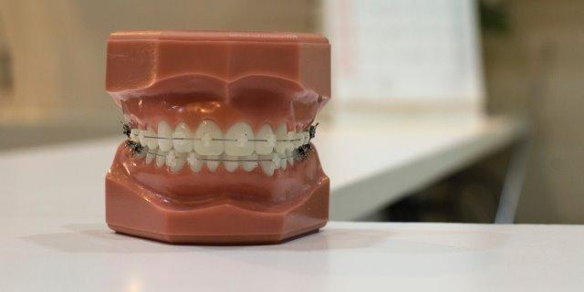 Bracket: Seguro Dental