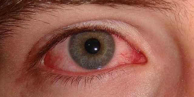 Uno de los síntomas de la alergia al polen es la conjuntivitis.