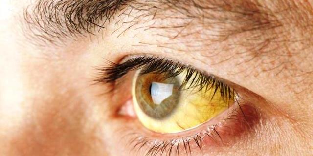 El color de ojos puede tornarse amarillo debido al síndrome de Gilbert.