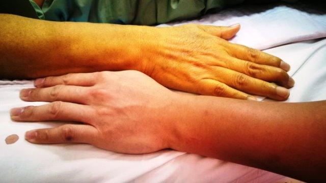 Ictericia en la piel por el aumento de bilirrubina en la sangre.