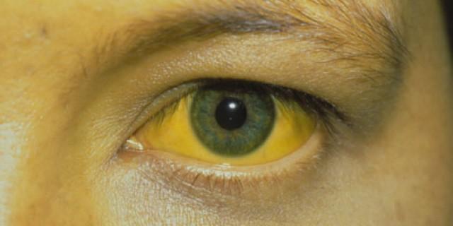 Ojo amarillo por síndrome de Gilbert.