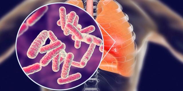 imagen tuberculosis pulmón