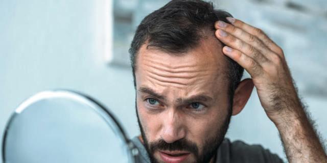 La calvicie afecta a muchos españoles